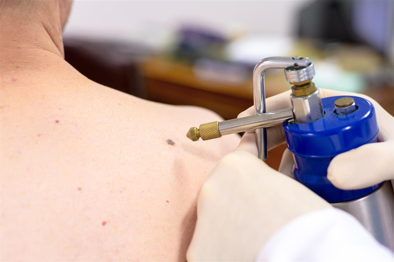 Dermatology Treatments Treating Dermatology Conditions