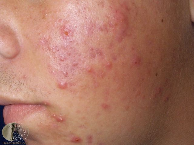 Acne What Is Acne Causes Diagnosis Amp Treatments Lsah