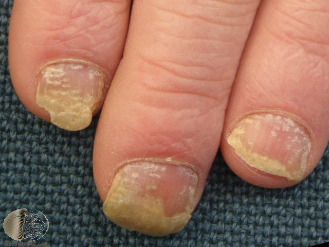 Onycholysis Treatment What Are The Causes Lsah Clinic