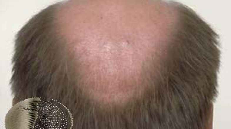 Androgenetic alopecia (male)