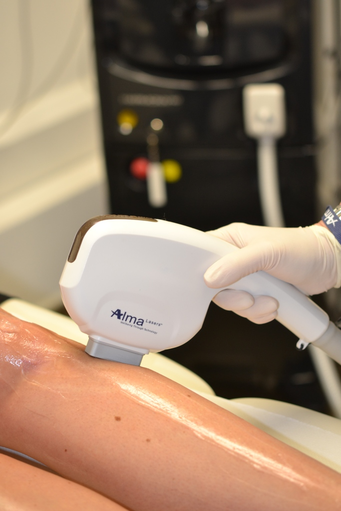 Soprano 'pain-free' laser hair removal