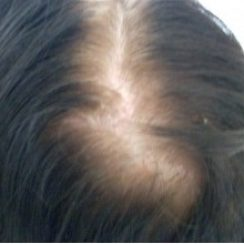 Female pattern balding