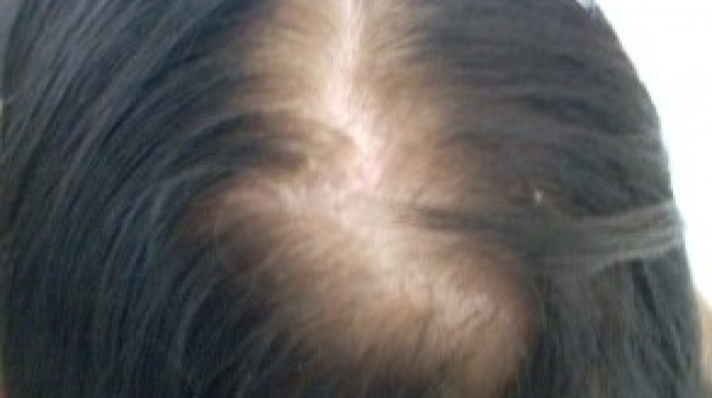 Female Hair Loss Treatment - Androgenetic Alopecia Causes ...
