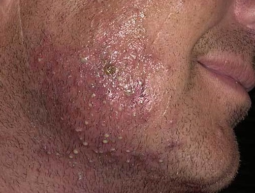 Folliculitis in Adults: Condition, Treatments, and ...