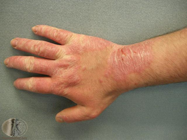 Contact Dermatitis The London Skin And Hair Clinic