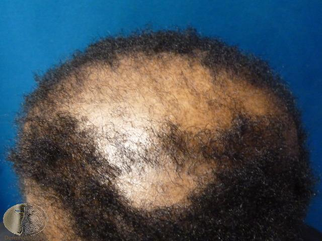 Scarring Alopecia The London Skin And Hair Clinic