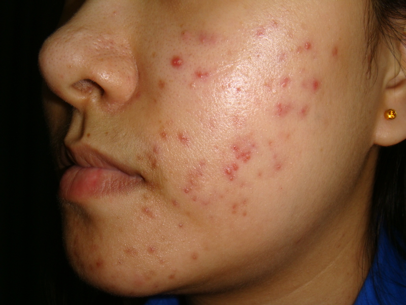 Acne Treatment From A Dermatologist - How To Treat Acne | LSAH Clinic