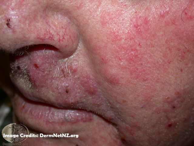 Fungal Skin Infection - What Causes Fungal Skin Infections
