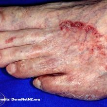 Fungal Skin Infection What Causes Fungal Skin Infections