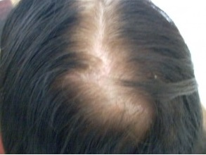 Female Hair Loss Treatment Androgenetic Alopecia Causes