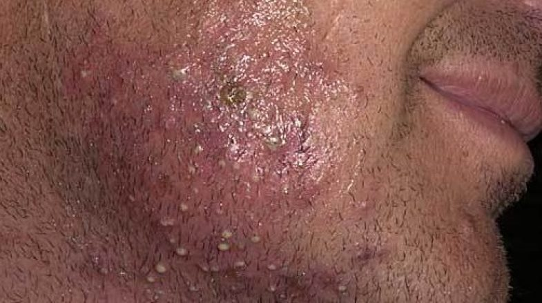 London Skin and Hair Clinic Ingrown Hair Staph Infection