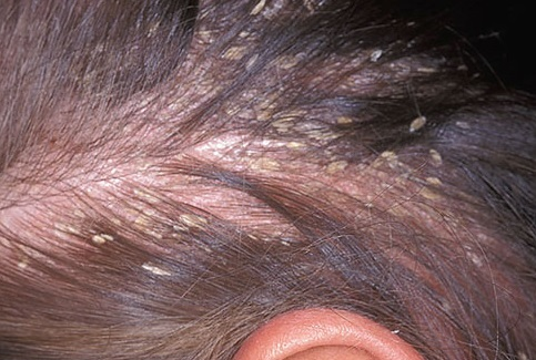 Seborrhoeic dermatitis of the scalp