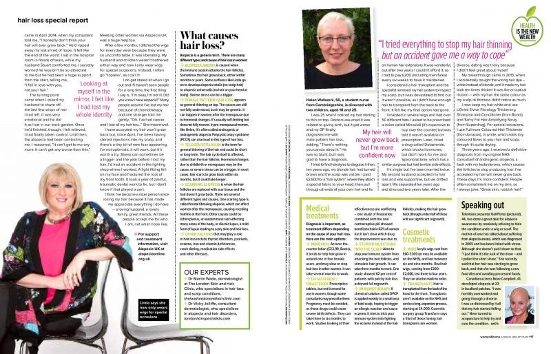 Hair loss special report by Emma Elms. September edition, Women and Home Magazine - Page 2 and 3