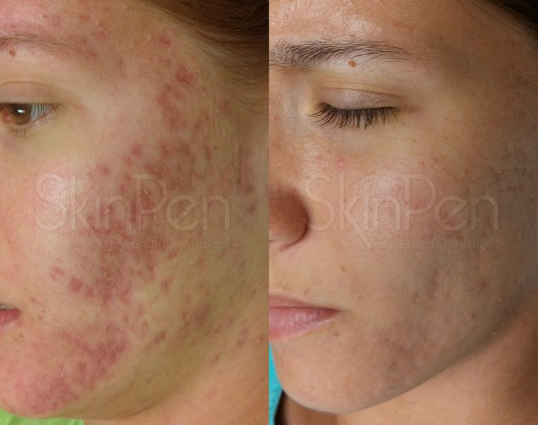 SkinPen Acne Scarring Results