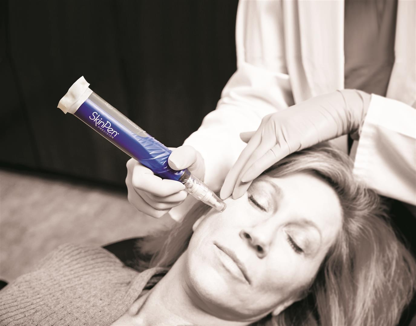 Models For Microneedling Acne Scar Treatment Wanted The