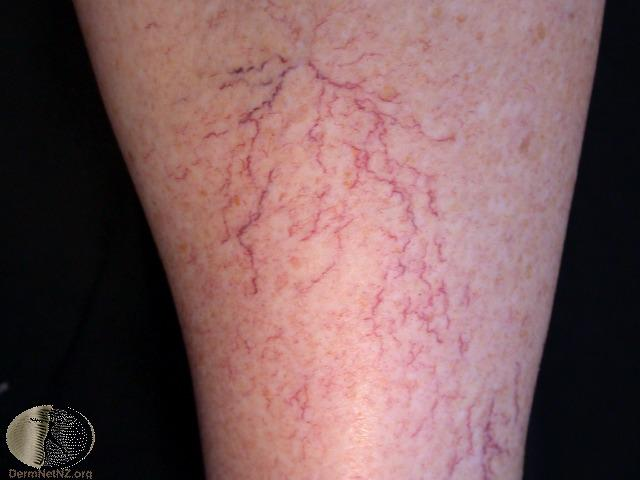 Microsclerotherapy - Thread Veins Spider Veins - London Skin and Hair
